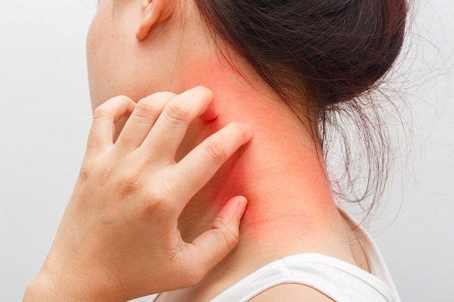 Las reacciones de anafilaxia siguen tres patrones específicos