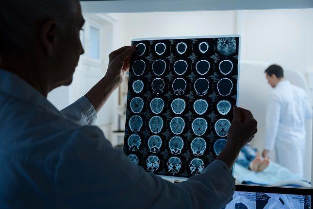 Los lóbulos parietales en la parte superior del cerebro pueden causar una sensación de cambios en el lado opuesto del cuerpo
