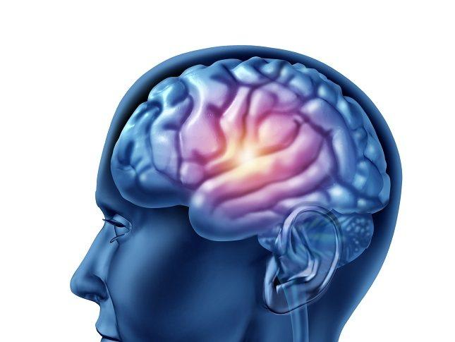 Muchos pacientes con esta malformación muestran anomalías en la base del cráneo