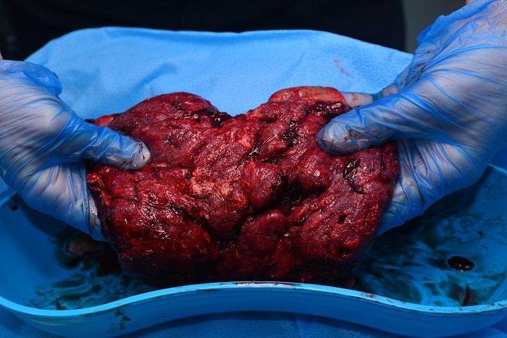 El lado materno de la placenta es el lado que se adhiere a la pared uterina