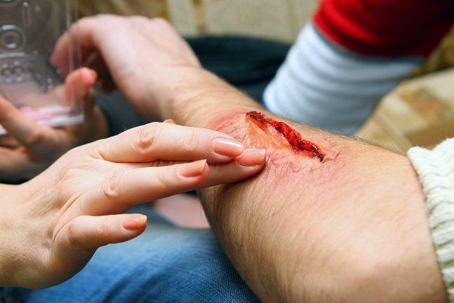 En el caso de las heridas cerradas no son más que fuertes golpes que causan hematomas