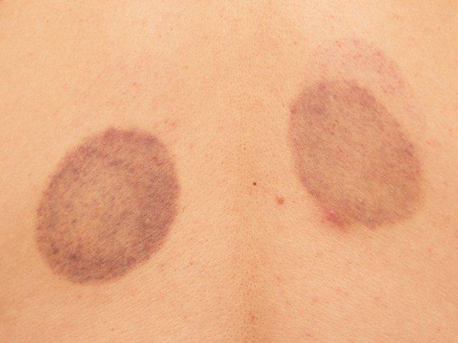 No siempre los conocidos como morados o hematomas salen a causa de un fuerte golpe
