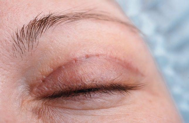 Es muy poco común que un caso de ectropión no acabe necesitando una cirugía para poderse corregir en su totalidad