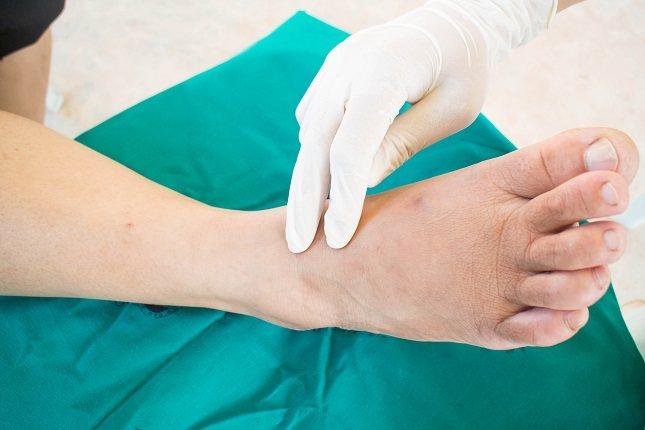 El sinónimo para entender mejor qué es la gangrena es la muerte del tejido