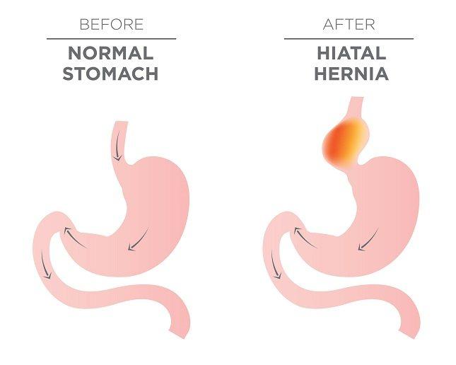 Un estómago intratorácico es una condición rara en la cual el estómago se desliza completamente en la cavidad torácica