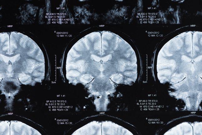Los lóbulos frontales se ocupan del comportamiento