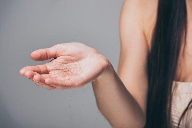Lo primero que debes saber sobre la alopecia androgénica o androgenética es que es el tipo más común en nuestra sociedad