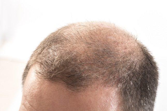 La genética es la culpable de que se desencadene la alopecia