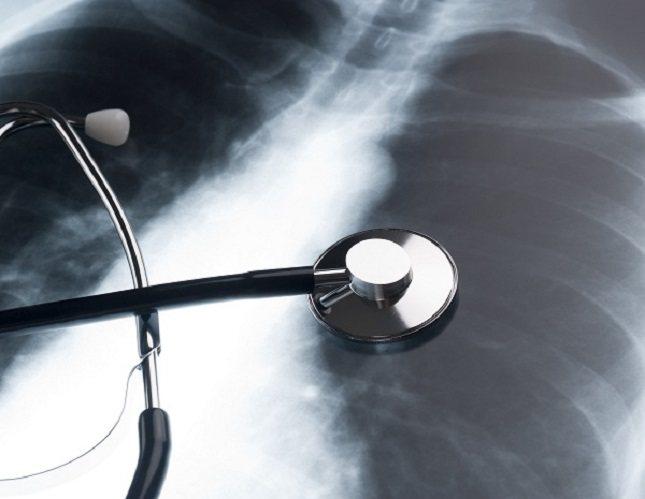 Según la información de la Organización Mundial de la Salud, cada año se descubren entre 1000 y 3000 casos de peste en el mundo</p><p>