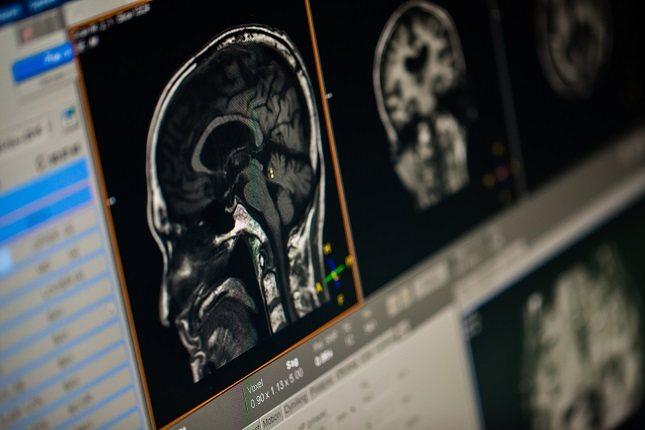 Las crisis focales se producen en una zona concreta del cerebro
