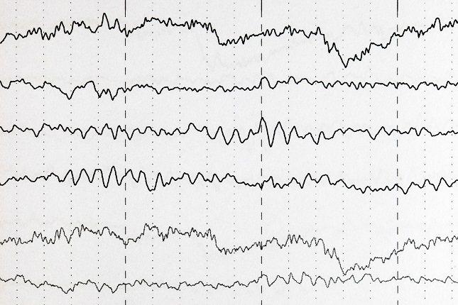 El objetivo del tratamiento impuesto por el médico es el reducir en la medida de lo posible las diversas crisis epilépticas