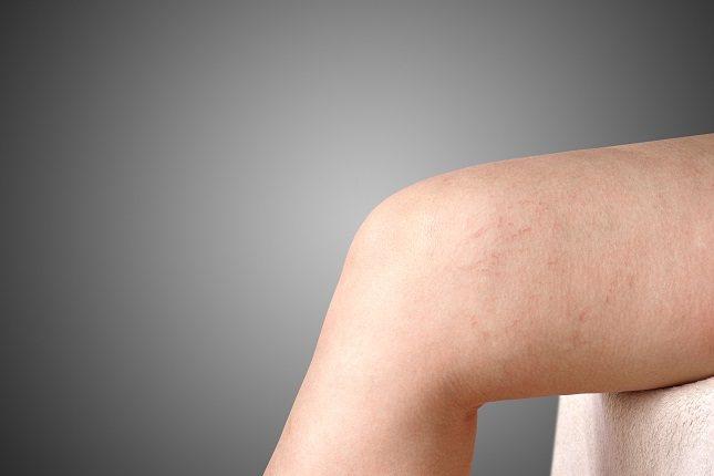 Someterse a una venograma puede suponer algún que otro riesgo para el paciente