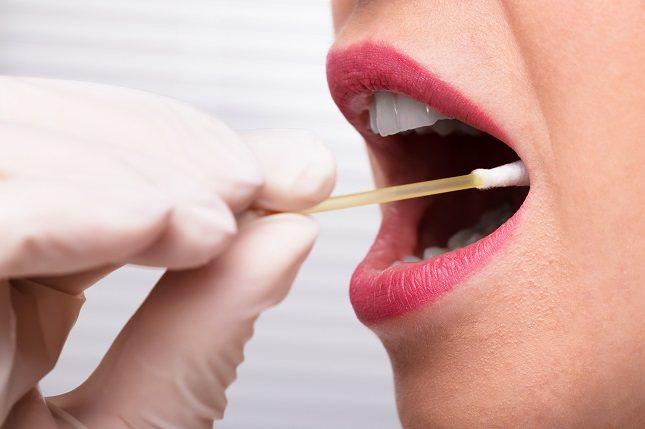 El herpes labial es una de las más fáciles de contagiar