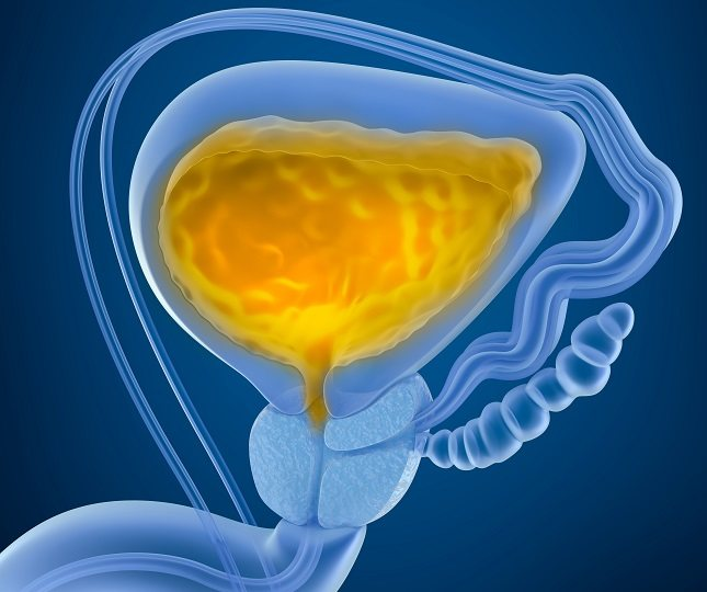 La uretritis es una afección que consiste en la inflamación de la uretra