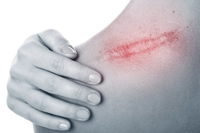 Los queloides responden mal a los tratamientos