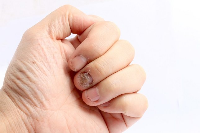 Las uñas negras son un problema muy común hoy en día