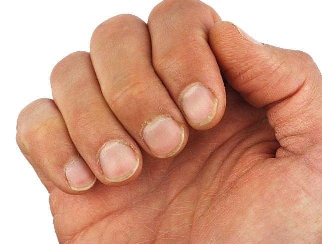 Algunas actividades deportivas pueden generar ciertos traumatismos repetidos en las uñas negras