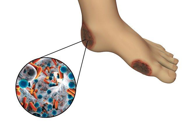 Lava tus pies a diario con agua tibia y jabón neutro