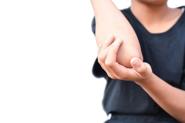 La sarna es una enfermedad de la piel causada por un ácaro