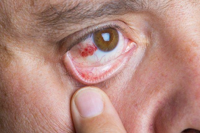 La queratitis se clasifica en dos tipos: infecciosa o no infecciosa