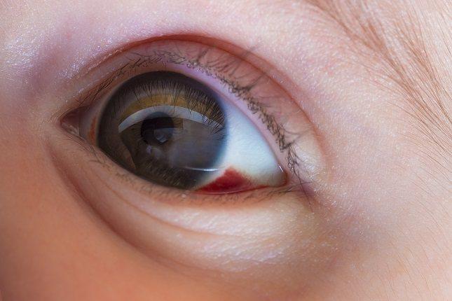 El tratamiento de la queratitis depende de la causa de la condición