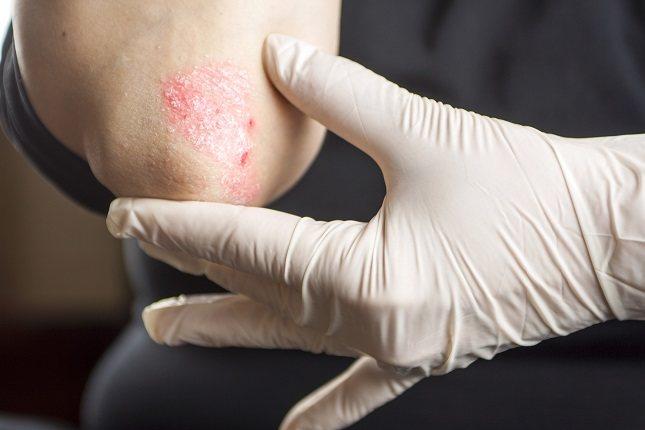Existen algunas personas en las que la psoriasis guttata puede llegar a convertirse en una enfermedad grave