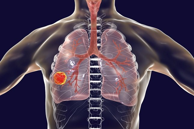 Es importante darse cuenta de que el cáncer no es una enfermedad única
