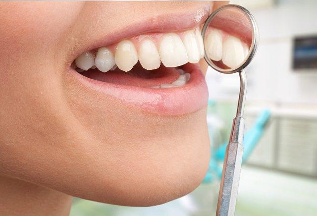 El absceso dental se produce por la acumulación de pus a raíz de la citada infección en los dientes o en las encías