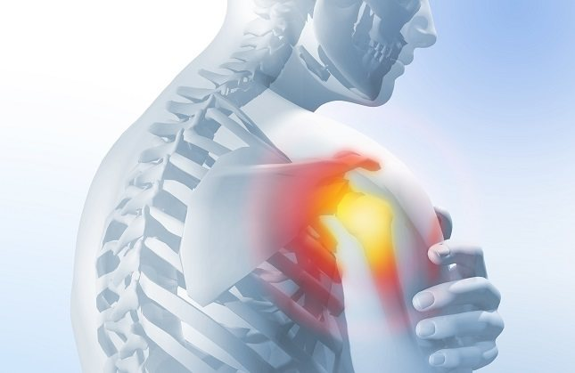 El hombro congelado también se conoce como capsulitis adhesiva