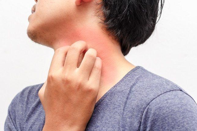 Algunas reacciones alérgicas son mucho más intensas que otras