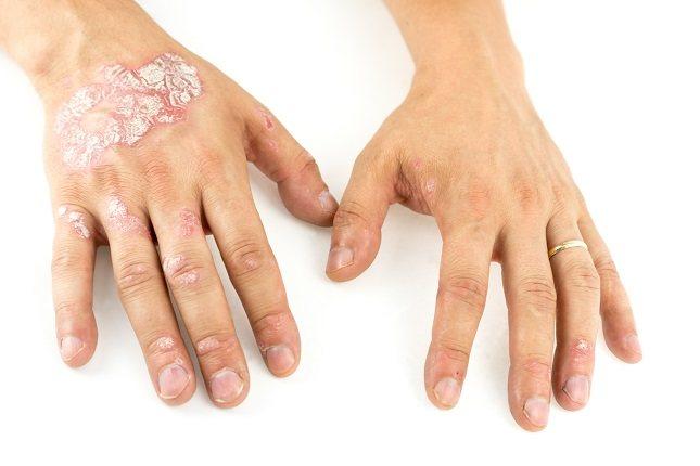 La psoriasis pustulosa es una complicación de la propia psoriasis