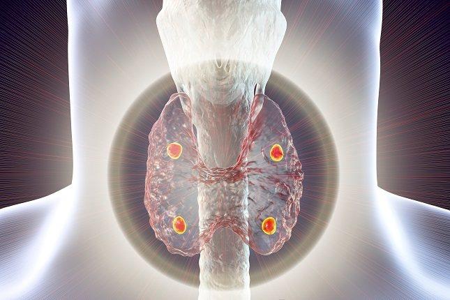 No existen medidas específicas para prevenir el hipoparatiroidismo