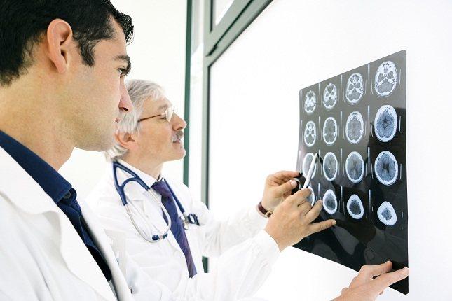 No hay pruebas específicas para diagnosticar la migraña con aura del tronco cerebral