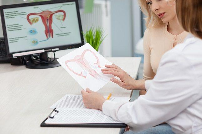 Un útero bicorne es uno de los varios tipos de anomalías del conducto mülleriano