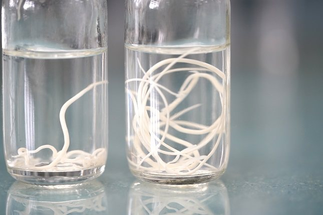 Las lombrices pueden llegar a bloquear parte del intestino