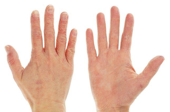 Con el picor se pueden desarrollar protuberancias rojas en los dedos