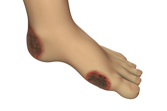 Las úlceras venosas son heridas relacionadas con una insuficiencia de las venas del sistema circulatorio
