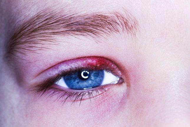 Existen causas que pueden provocar la aparición de ptosis palpebral