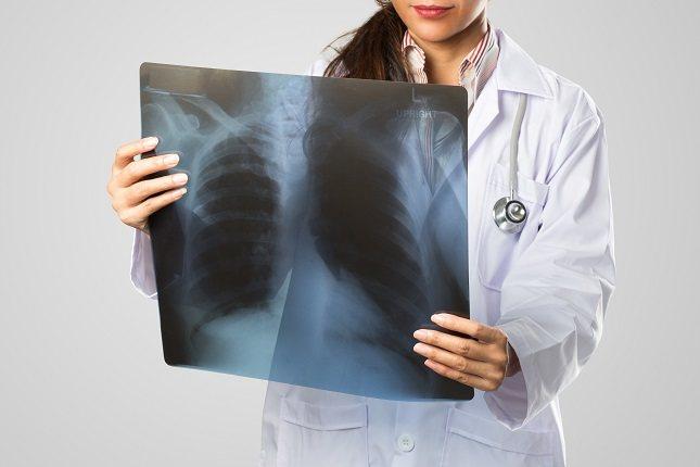 La atelectasia es una afección que consiste en que los sacos pulmonares no se hinchan correctamente