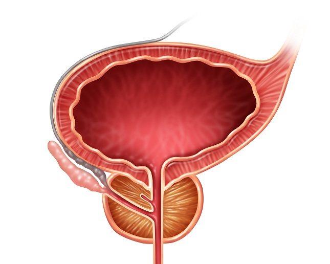 La clamidia es la infección bacteriana de transmisión sexual común