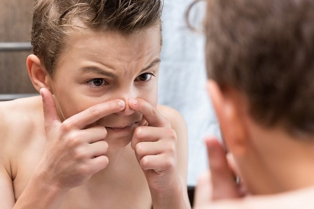 Nunca se ha demostrado que la dieta tenga un papel en la causa o el tratamiento del acné