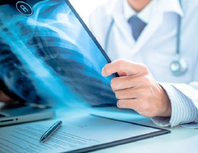 El osteosarcoma suele afectar a huesos largos