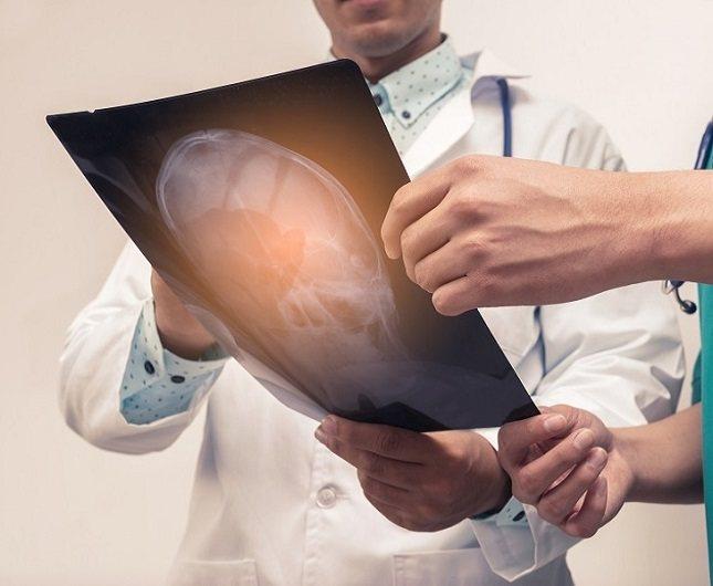 Se trata de un trastorno que afecta al desarrollo del cerebro durante el embarazo