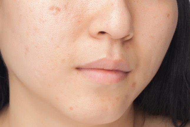 El acné hormonal afecta sobre todo a las mujeres