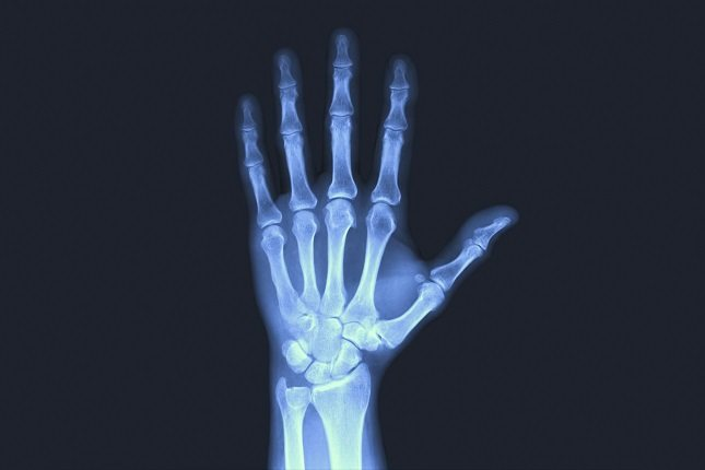 La hipofosfatasia, es un trastorno metabólico que se caracteriza por una deficiente mineralización de los huesos
