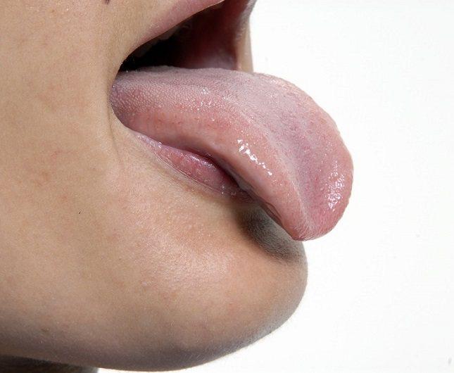 El cáncer oral no es uno de los más conocidos