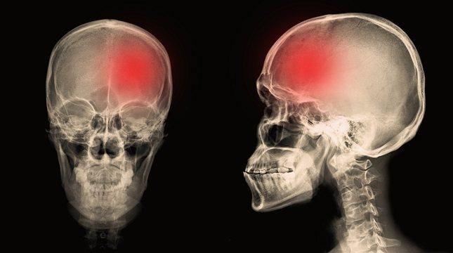 La hemorragia subdural es causada generalmente por una lesión en la cabeza