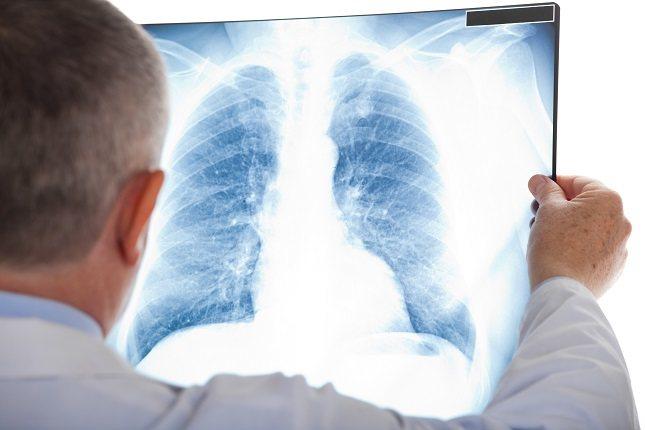 El de pulmón es el cáncer más frecuente en todo el planeta