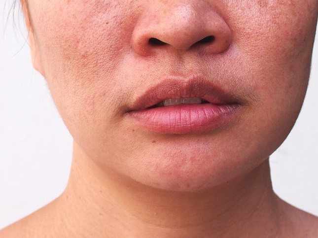 Realiza ejercicios faciales diariamente para ayudar a tensar tu piel