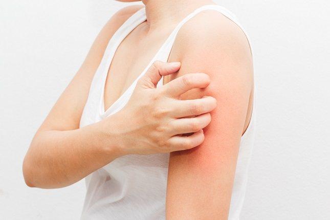 La miosis cutánea es un tipo de afección producida por la infestación de larvas en el organismo